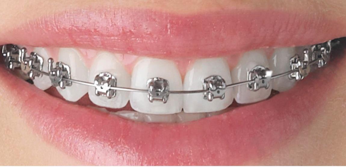 aparat samoligaturujacy na zębach